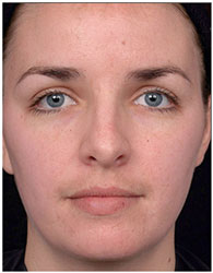 posle-primenenija-kosmetiki