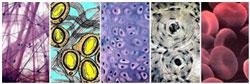 dioksid-kremnija-sposobstvuet-ozdorovleniju-soedinitelnyh-tkanej