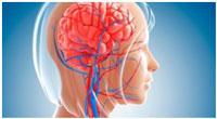 biostimuljacija-mozgovogo-krovoobrashhenija